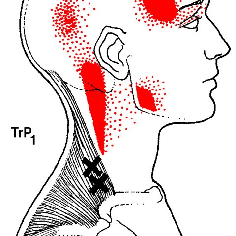 trapezius-trigger-points