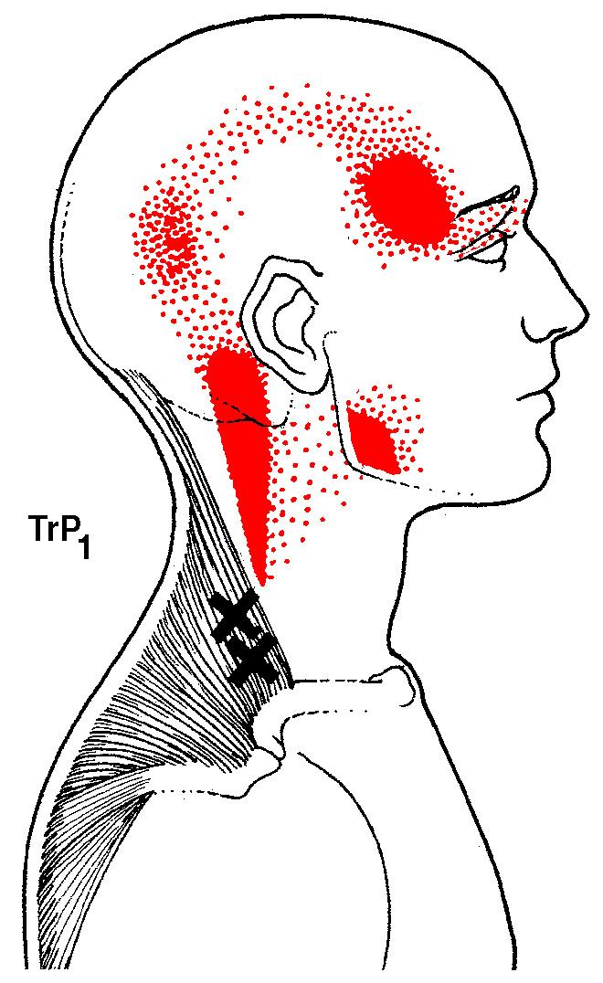 trapezius-trigger-points